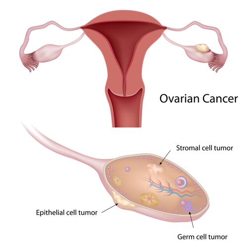 Immunotherapeutic Targets For Epithelial Ovarian Cancer Identified By Researchers