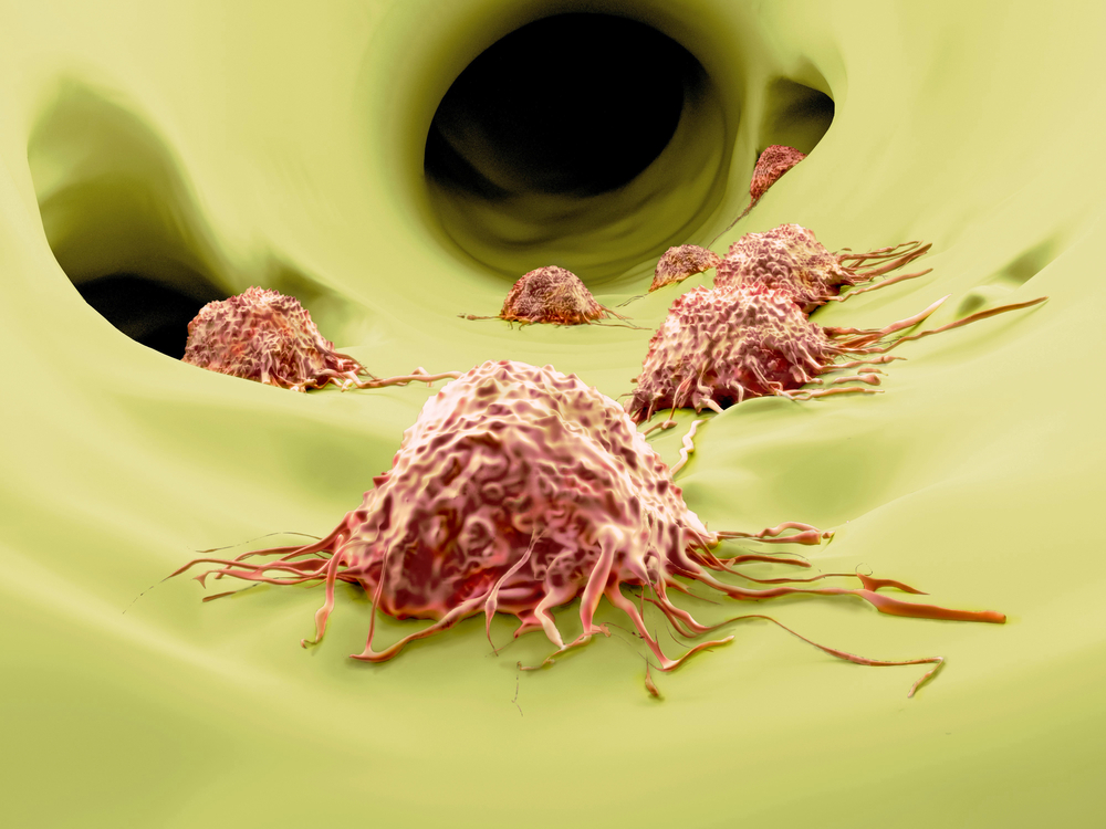 First-In-Class Antibody Mixture Reduces Tumor Colorectal Cancer Progression