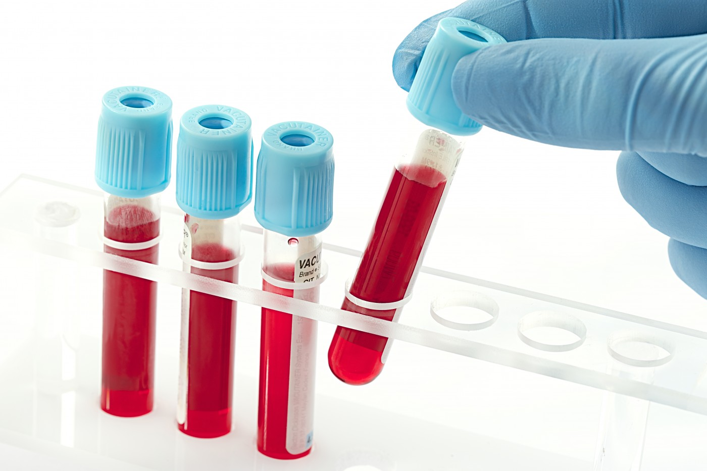 Simple Test Can Improve Donor Selection for Stem Cell Transplant to Older Blood Cancer Patients