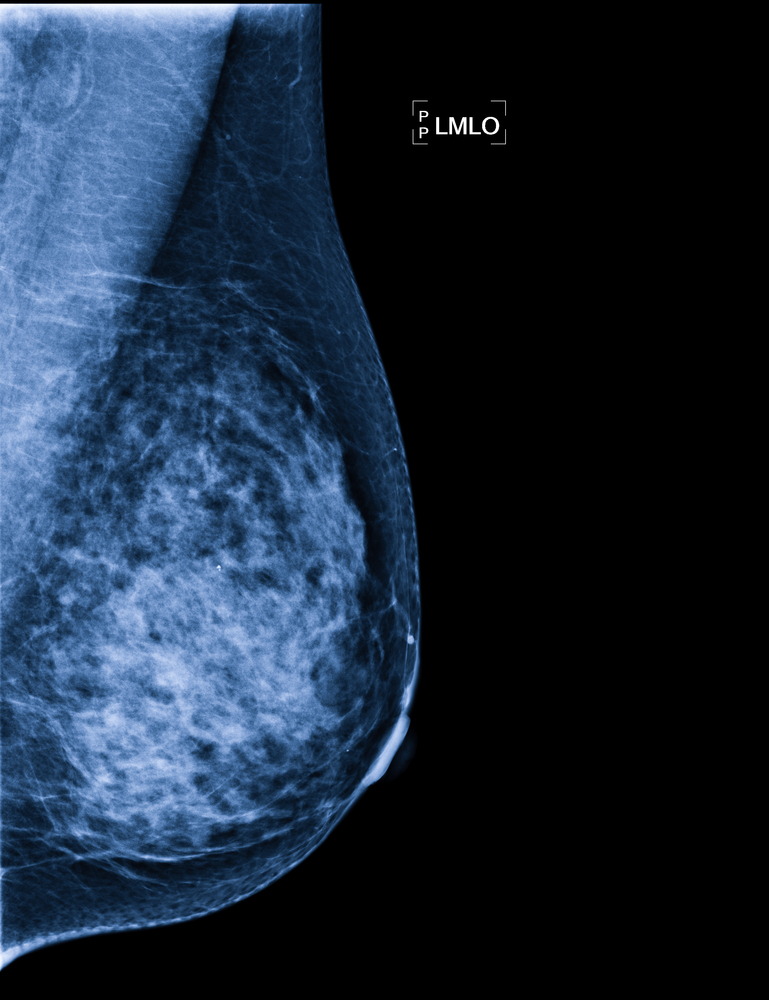 Specific Protein Has Dual Role in Breast Cancer Development