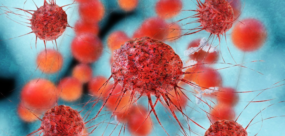Advanced Lung Cancer Patients Seen to Benefit from Pembrolizumab Therapy