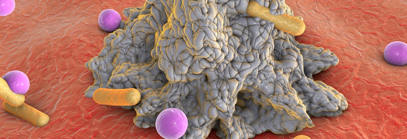 Cancer Immunotherapy Study Tips Immune System to Favor Tumor-Fighting Cells