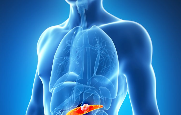 pancreatic cancer treatment