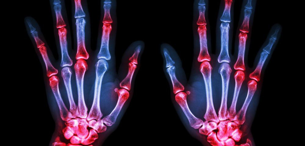 Immune Checkpoint Inhibitors Increase Risk of Autoimmune Rheumatoid Diseases