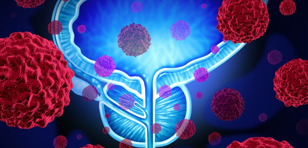 Patients with Metastatic Prostate Cancer Might Benefit from Immune Checkpoint Inhibitor