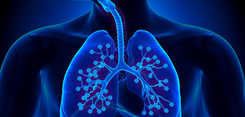 Canakinumab Reduces Incidents of Lung Cancer and Associated Mortalities, Study Finds