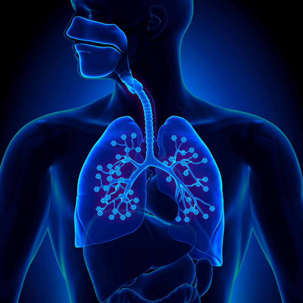 More Lung Inflammations in Lung, Kidney Cancer After PD-1 Inhibitors