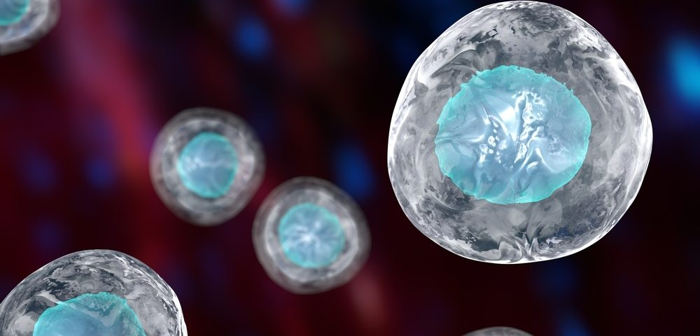 Tumor Stem Cells Seen Play Role in Incurable Form of Brain Cancer