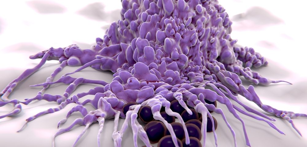 Immunotherapy to Help Macrophages 'Eat' Cancer Cells to Start Clinical Trial in 2017