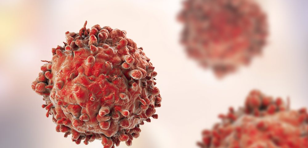 Loss of Specific Protein Complex in Cancer Cells May Explain Poor Response to Immunotherapy