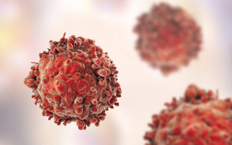 Researchers May Now Predict Which CLL Patients Will Respond to Kymriah CAR T-Cell Therapy, Study Says