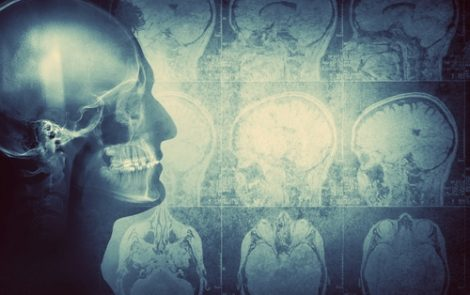 Certain Brain Tumors May Respond to Immunotherapies, Other Approved Treatments
