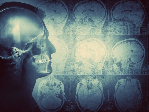 Inovio Starts Trial Testing Triple-combo Immunotherapy in Newly-diagnosed Glioblastoma