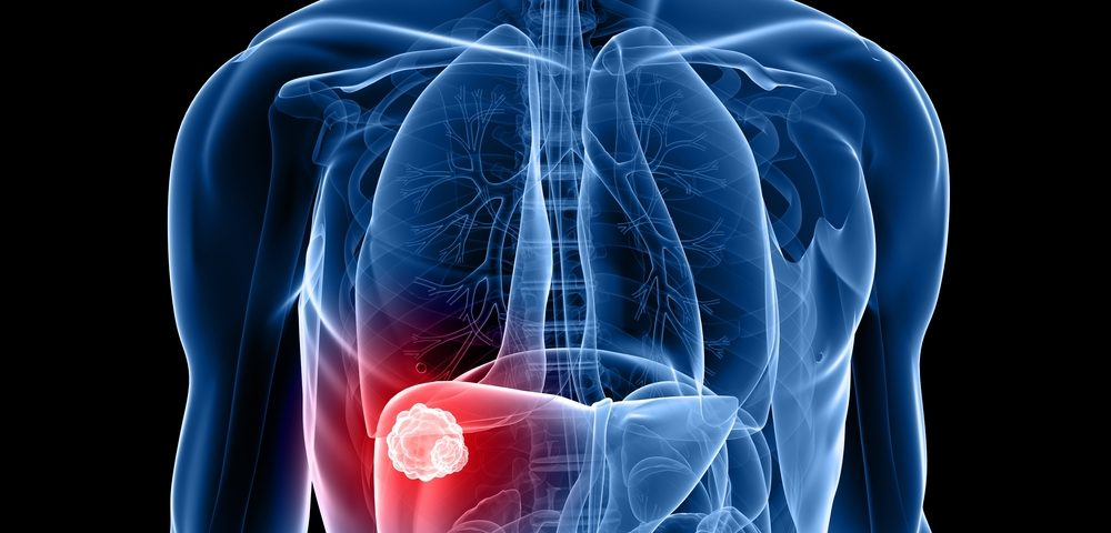 Keytruda Slows Liver Cancer Progression in Phase 2 Trial