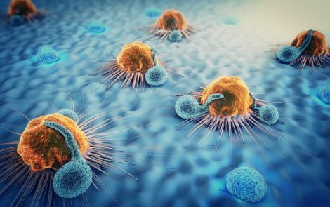 Blocking Cellular Pathway May Make Radiotherapy More Effective by Activating Immune System, Early Study Reports