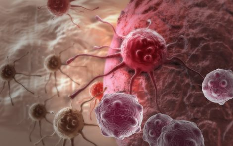 Investigational T-Cell Therapy Promising in First Liposarcoma Patients in Phase 1/2 Trial