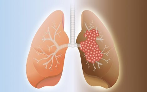 Opdivo-Yervoy Plus Shorter Chemotherapy Course Extends Survival of Patients with Advanced Lung Cancer, Early Trial Data Show